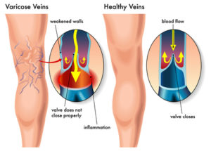 varicose veins vs healthy veins