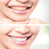 The Basics of Teeth Whitening