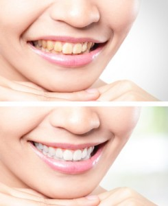 whitened teeth
