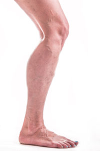 Varicose Veins / sclerotherapy treatment