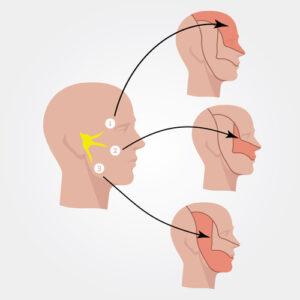 Trigeminal Neuralgia Explanation