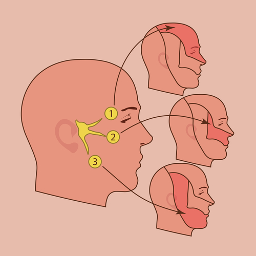 Trigeminal neuralgia diagram