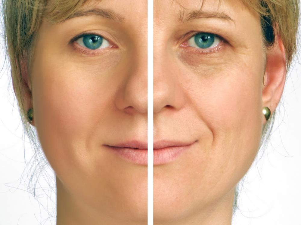 botox patient's face