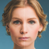 Medical Changes: Where You Could Soon Be Receiving Botox