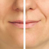 Nurses: You Can Offer Patients Non-Surgical Face Lifts