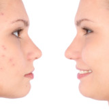 Botox injections aren't just for wrinkles!