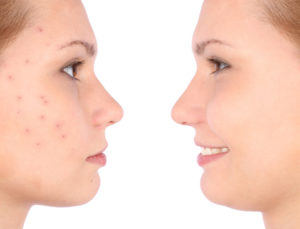 acne before and after botox