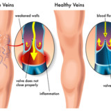 Laser Therapy to Treat  Varicose Veins