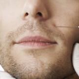 Men are Often the Best Botox Customers (Secretly)