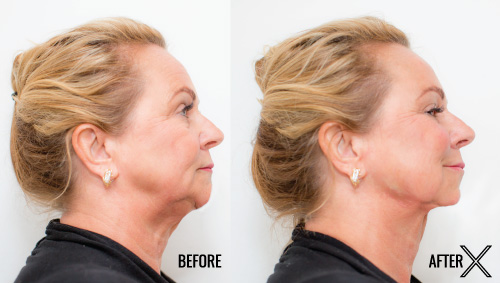 non-surgical facelift patient